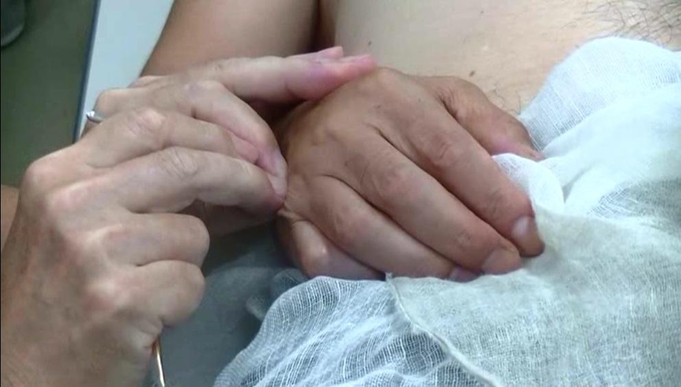 臨床デモンストレーション