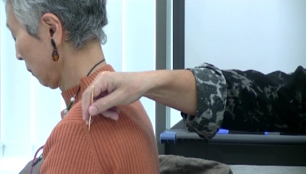 衛分に対する鍼法(鍼の角度=30~40°)
