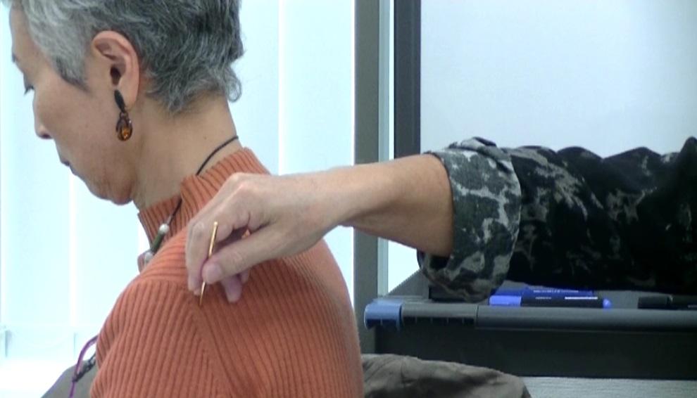 気分に対する鍼法(鍼の角度=50~60°)