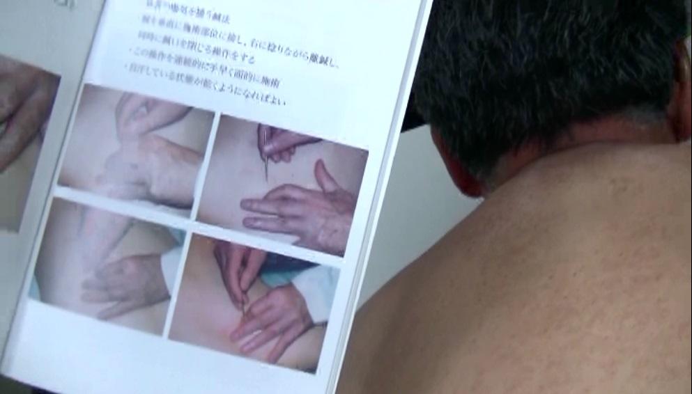 面に対する鍼法(温膚鍼法)