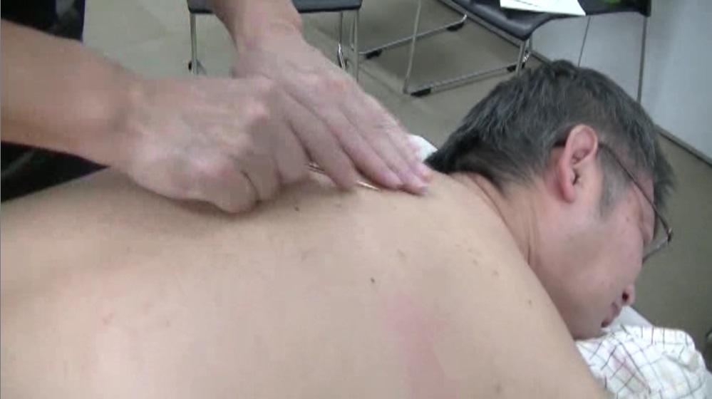 治療(面に対する鍼法:滑気鍼法)
